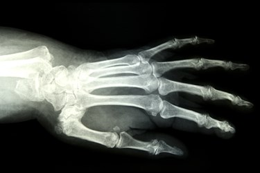 Digital X Ray in muzaffarnagar, Xray in muzaffarnagar, Most Advanced Digital X Ray in muzaffarnagar, Cost of Digital X Ray in muzaffarnagar